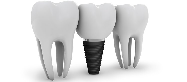 Ideal Choice for Tooth Replacement