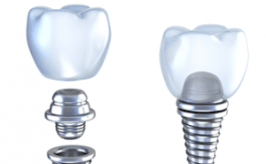 Dental Implants Recovery Tips