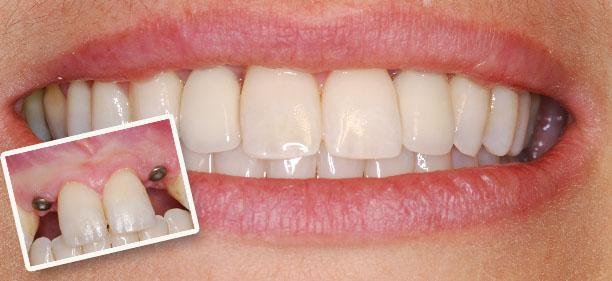 Bring Back Happy life with Dental Implants