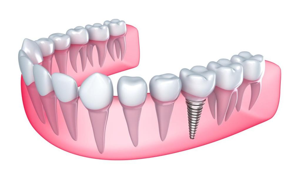 Bring Confidence With Dental Implants