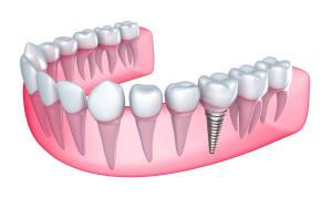 Pertinent Questions about Getting Dental Implants