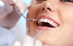 cheap-dental-implant-melbourne