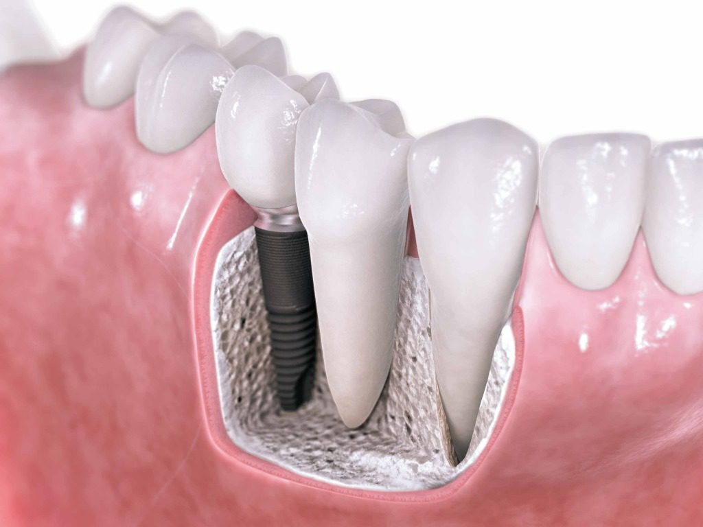 Cost Effective Dental Implant Treatments