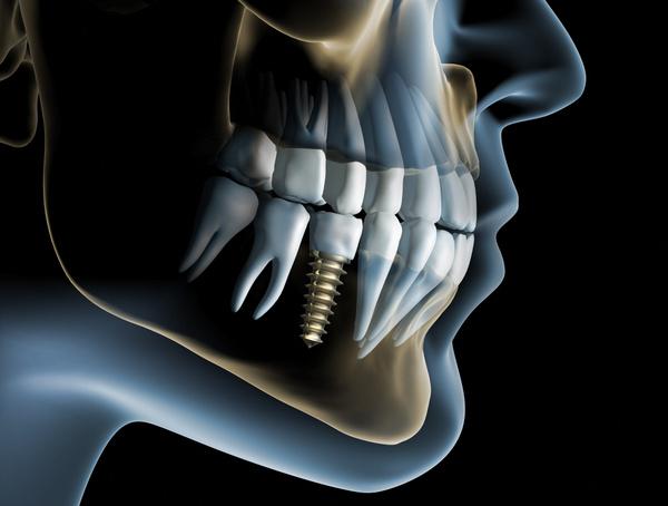 Dental Implants Professionals