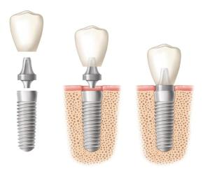 After a Dental Implant Procedure