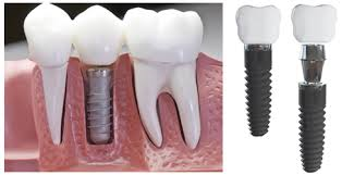 Cheap Dental Implants Melbourne