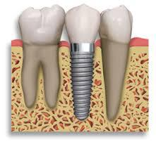 Dental Implants Treatment Melbourne