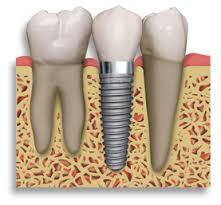 Dental Implants Treatment Melbourne