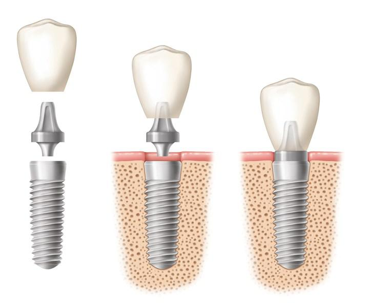 Re-live your Life with Dental Implant Professionals