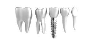 Dental Implant Procedure