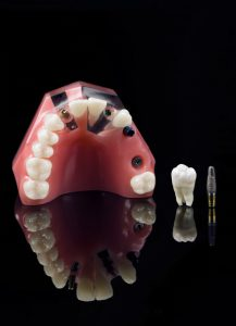 Perfect Tooth Implant Candidate