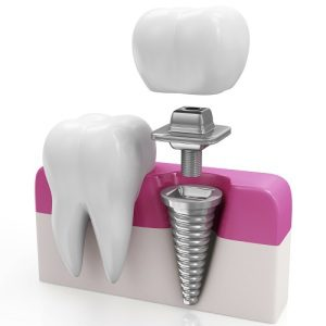 Dental Implants at Prices that you can afford
