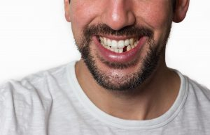 effects-of-missing-teeth