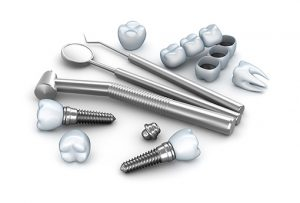 Dental Implants – A Flexible Restoration Option