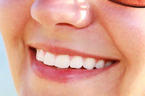 Ask About Dental Implant Melbourne