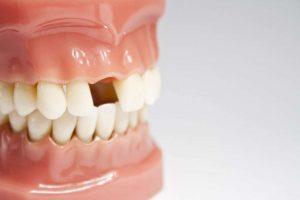 dental implants in Melbourne