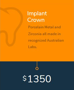 Implant Crown cost in Melbourne
