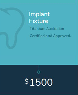Implant Fixture cost in Melbourne